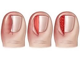 Красота и здоровье ногтей. Лечение вросшего ногтя в Одессе